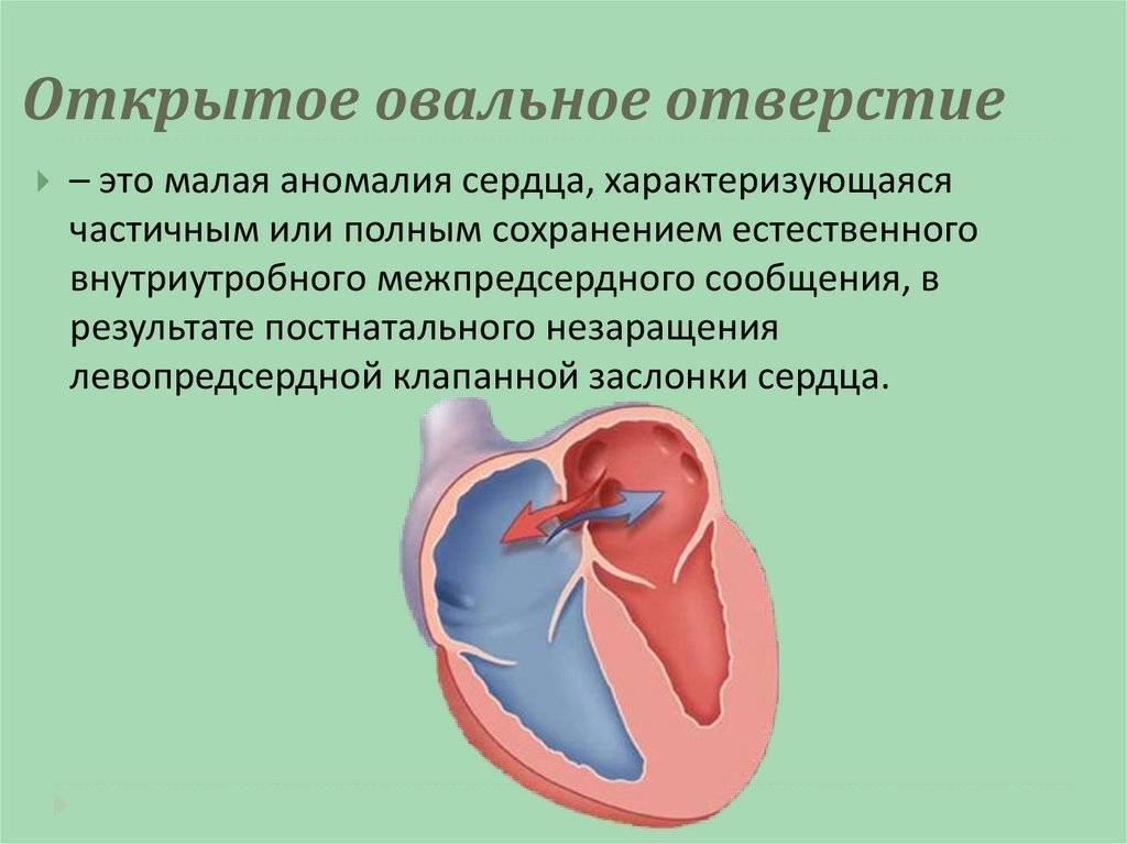 Овальное окно в сердце новорожденного: что это такое, когда должно закрыться у грудничка