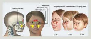 Признаки гайморита у детей 3 лет, как лечить гайморит у ребенка 3 года?