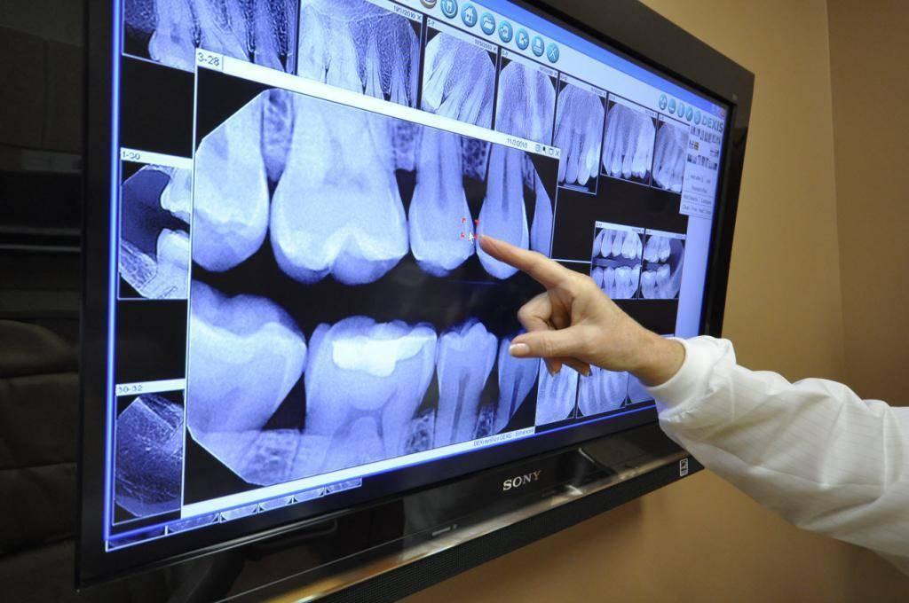 Можно ли делать рентген при планировании беременности