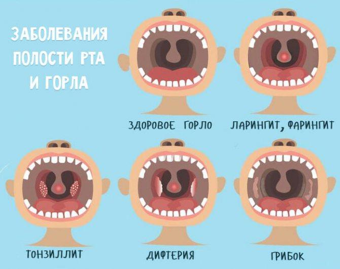 Ларингит у детей: признаки, как лечить, антибиотики