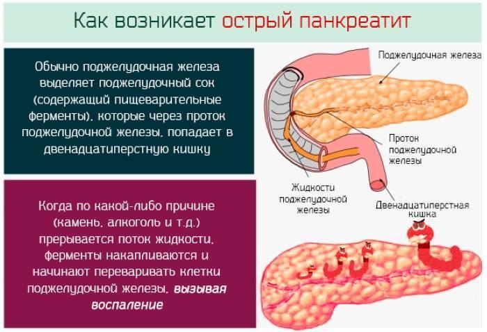 Обострение панкреатита: сколько длится, что делать при приступе панкреатита?