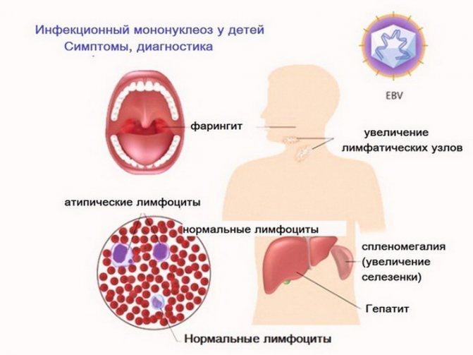 Инфекционный мононуклеоз у детей: симптомы, лечение, диета, последствия