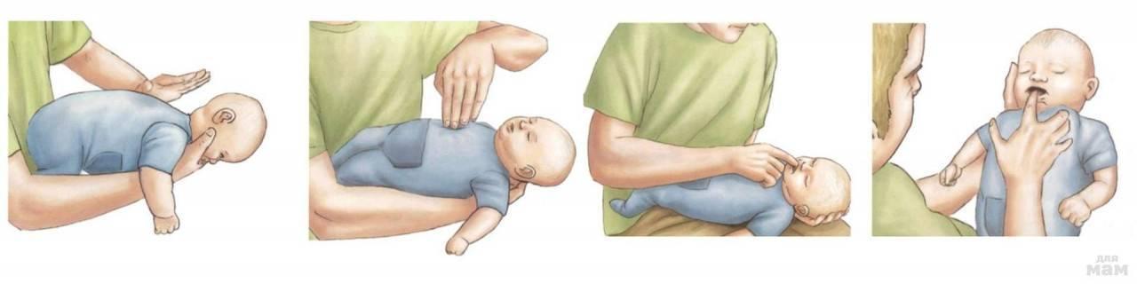 """Что делать если ребенок подавился и задыхается? первая неотложная помощь — журнал """"рутвет"""""""