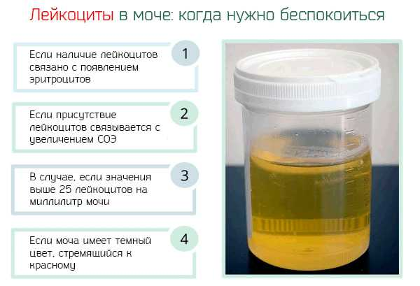 Анализ мочи,  расшифровка. нормы анализа мочи. норма белка, эритроцитов, лейкоцитов, глюкозы, эпителия, билирубина, цилиндров и бактерий в моче.