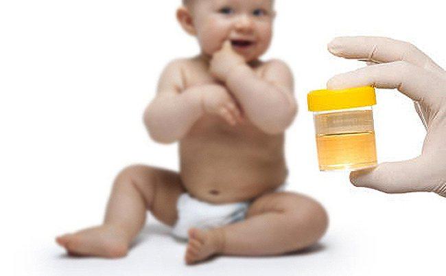 Пахнет моча у ребенка 3 месяца