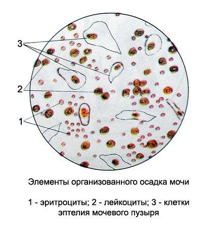Эритроциты, лецитиновые зерна и эпителиальные клетки в спермограмме