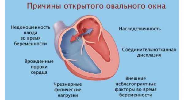 Открытое овальное окно в сердце у ребенка: судьба полноценной жизни под вопросом