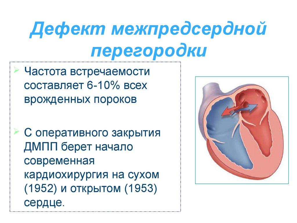 Дефект межпредсердной перегородки сердца у детей и взрослых причины симптомы как лечить