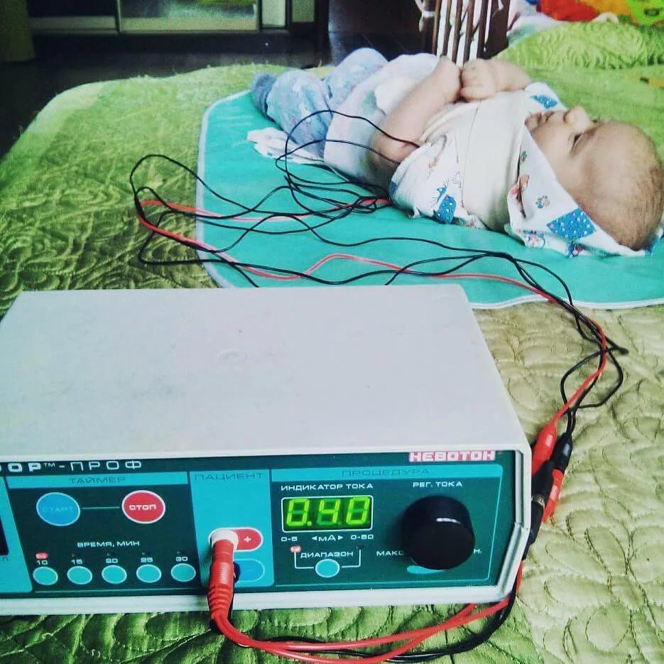 Электрофорез: что это такое и зачем проводят процедуру для грудничков и детей старшего возраста? электрофорез для грудничков — полезная и безболезненная процедура.