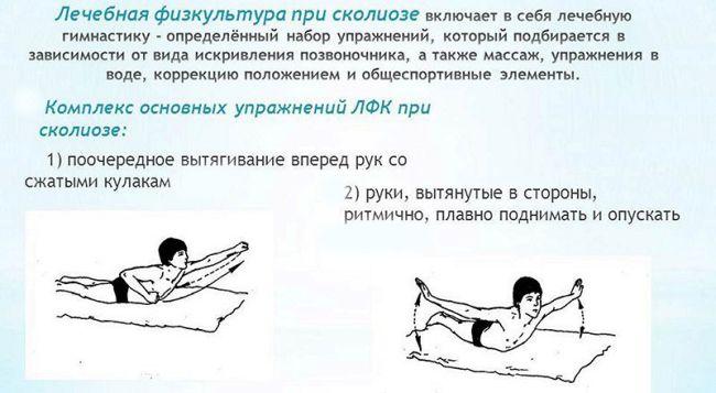 Комплекс лфк при сколиозе у детей: упражнения при 1, 2, 3 степени искривления