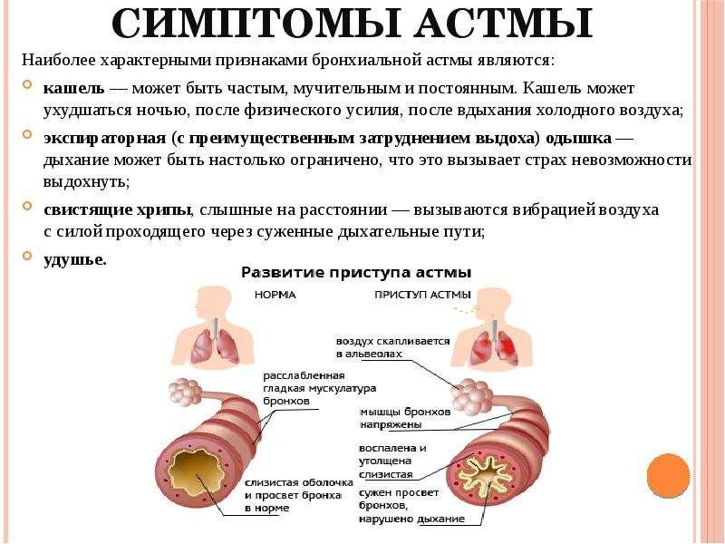 Бронхиальная астма у детей – симптомы,  признаки, лечение, профилактика