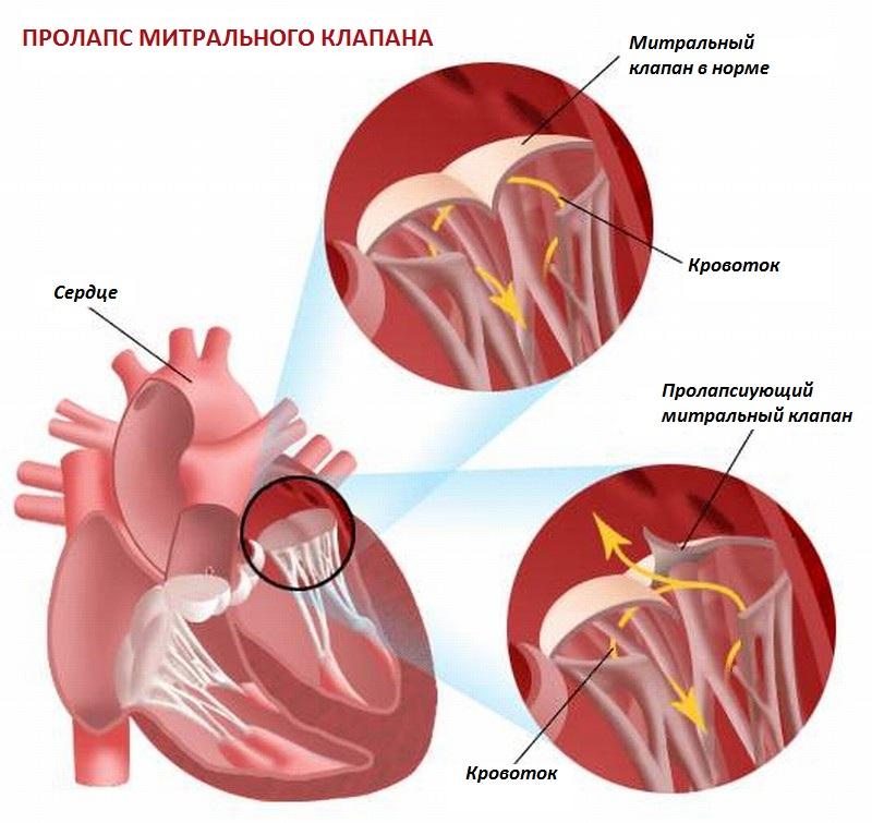 Дополнительная хорда в сердце: что это такое, классификация, симптомы, лечение и прогноз