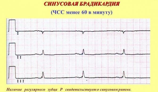 Брадикардия сердца у детей: что это такое, брадикардия у новорожденных и подростков