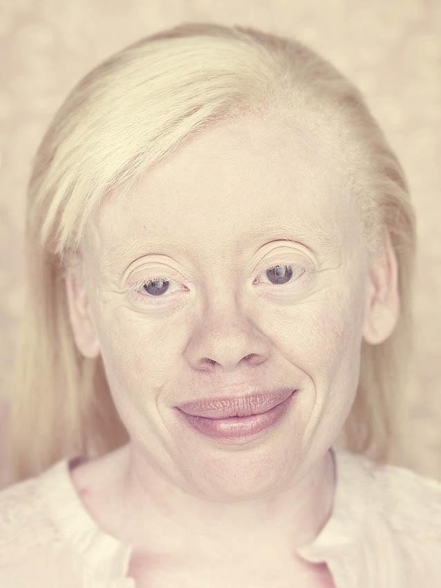 Кто такие люди альбиносы и можно ли вылечить альбинизм