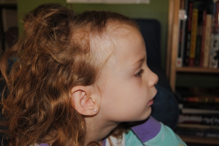 Плохо растут волосы у ребенка 5 лет причины и лечение