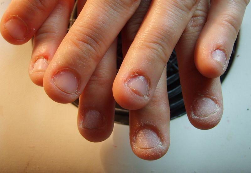 Эффективные методы, как отучить ребенка грызть ногти на руках! причины и последствия проблемы, советы психолога