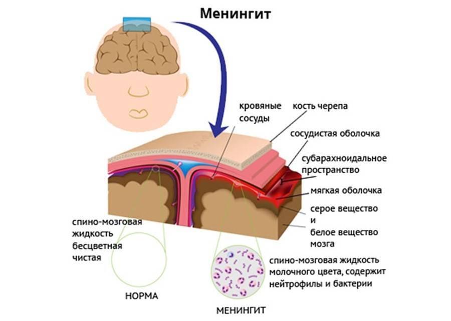 Симптомы и лечение серозного менингита у ребенка