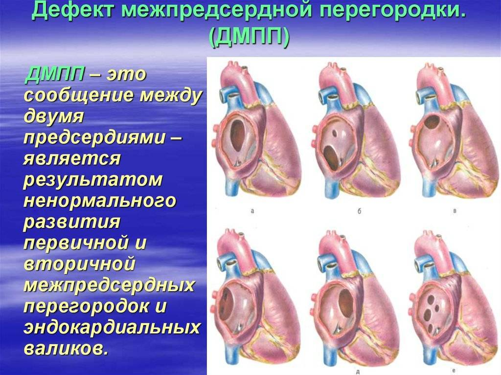 Дефект межпредсердной перегородки (дмпп) у новорожденных детей