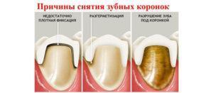 Что делать, если у ребенка болит зуб: чем обезболить?