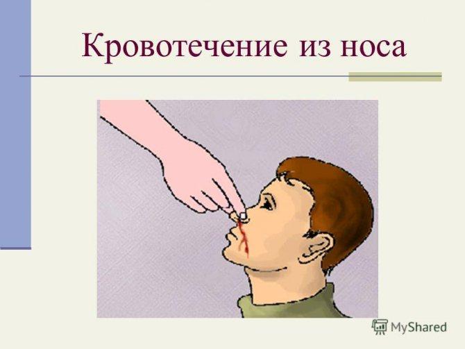 Как остановить кровь из носа у ребенка в домашних условиях?