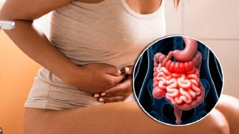 Колика кишечная – причины, симптомы и лечение