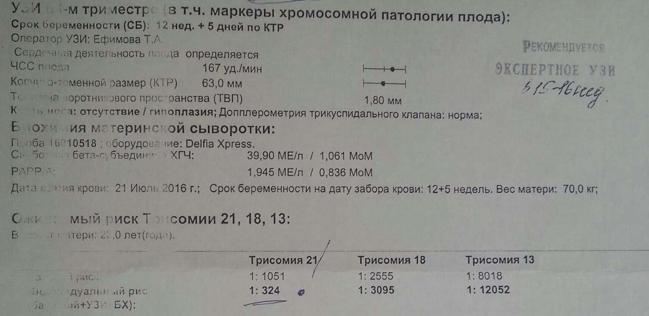 Анализ крови на хромосомы при беременности
