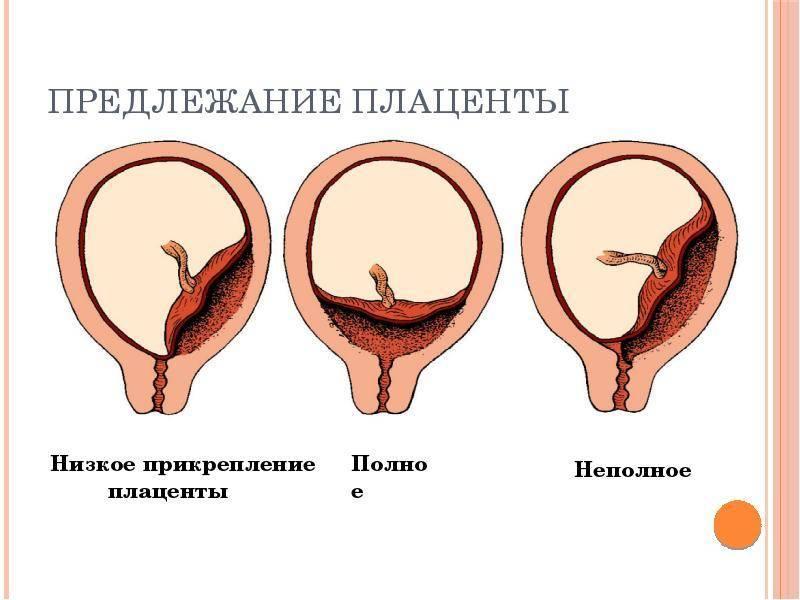 Плацента по задней стенке: преимущества расположения и возможные патологии / mama66.ru
