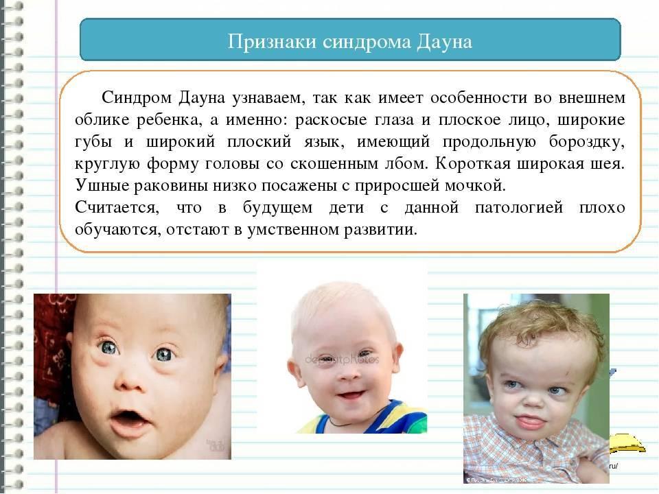 Развитие ребенка с синдромом дауна по месяцам