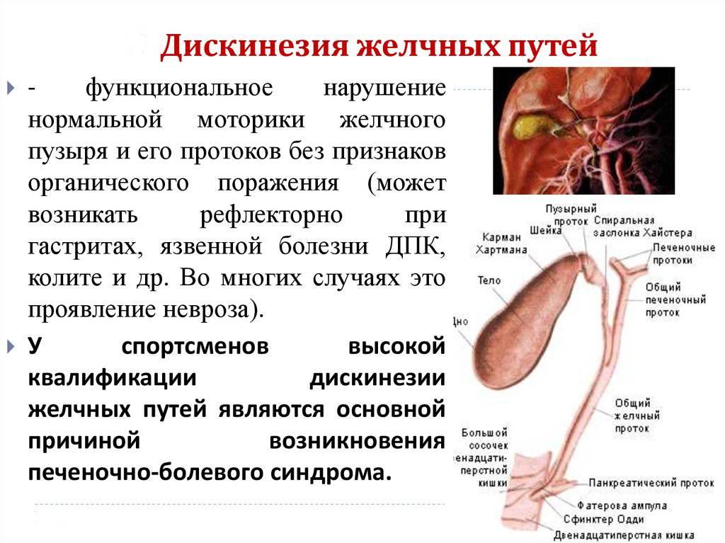 Острый холецистит у детей   компетентно о здоровье на ilive