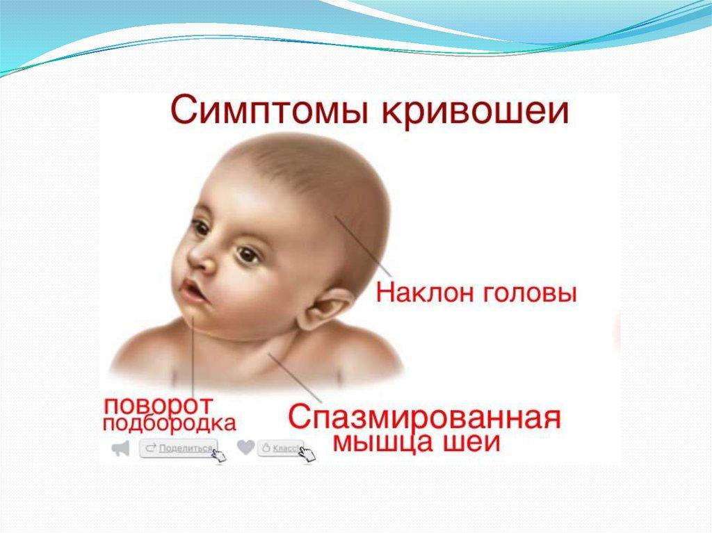 Кривошея у ребенка 3 месяца – симптомы патологии