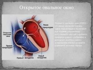 Открытое овальное окно у ребенка — сердце