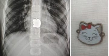 Ребенок проглотил: симптомы, советы врачей и оказание первой помощи