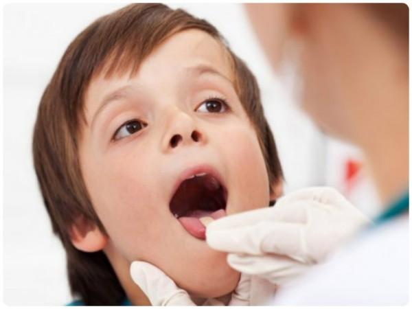 Отек гортани у детей - симптомы, лечение, как снять