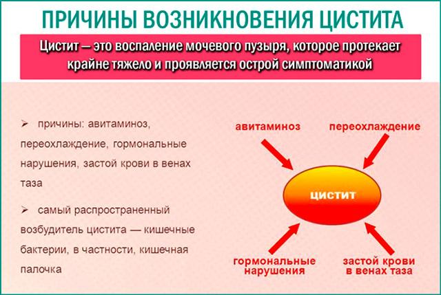 Цистит у девочек: лечение (медикаменты, народные средства), симптомы, формы, причины, диагностика, профилактика