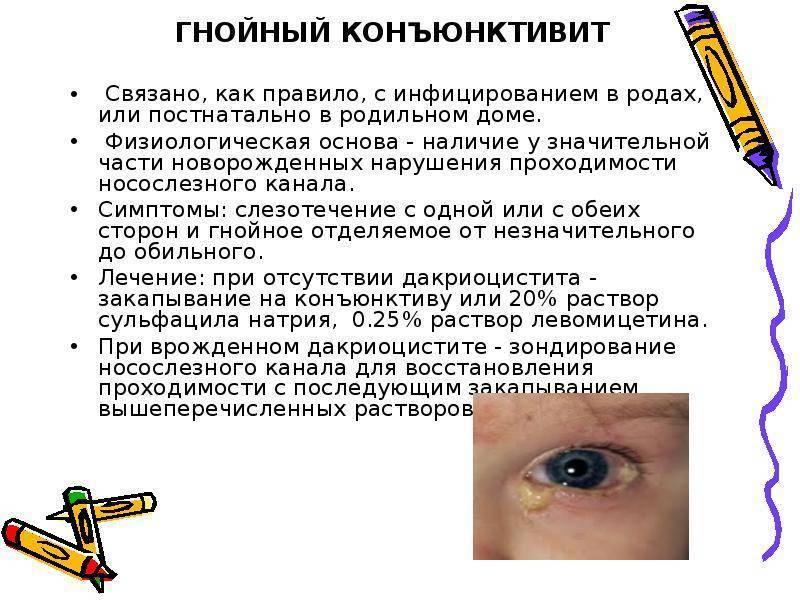 Конъюнктивит у ребенка - симптомы, чем лечить заболевание