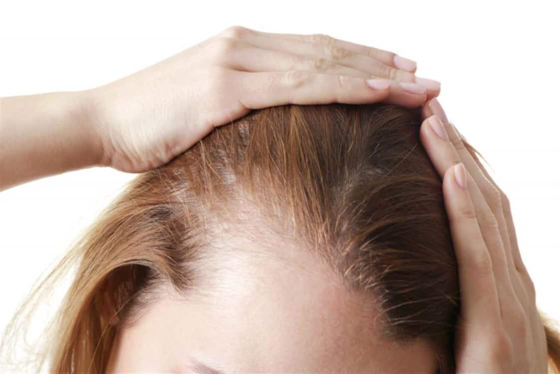 Причины выпадения волос у подростков мальчиков причины и лечение | обзор лучших средств от выпадения волос
