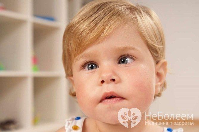 Лечение и причины косоглазия у детей: упражнения