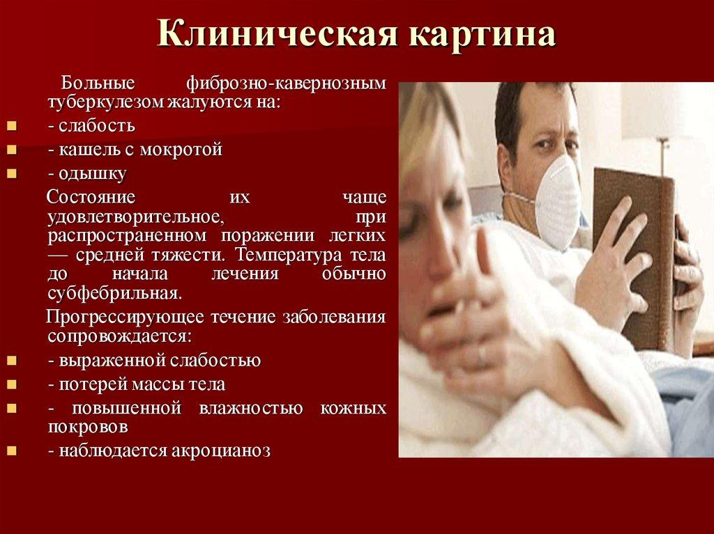 Симптомы детского туберкулеза