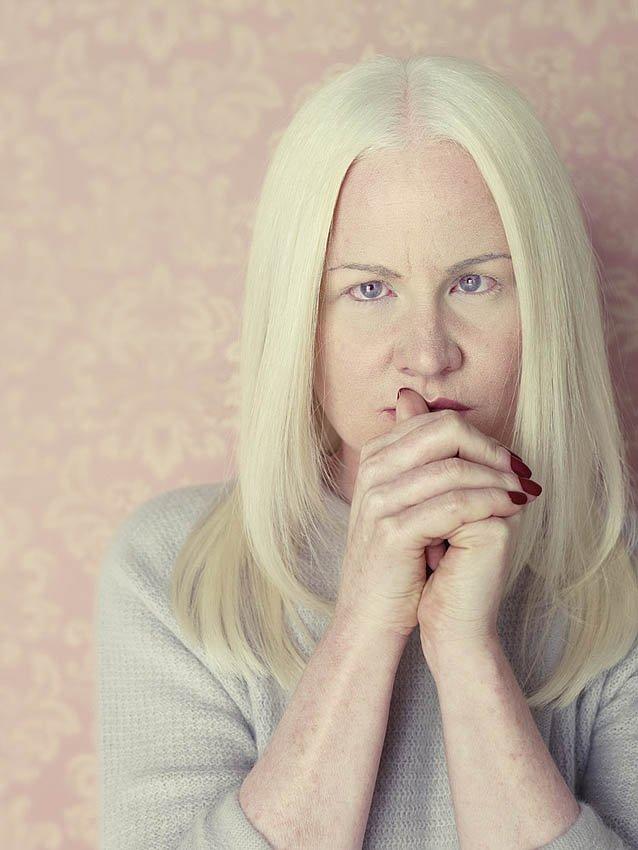 Кто такие люди альбиносы и дети альбиносы