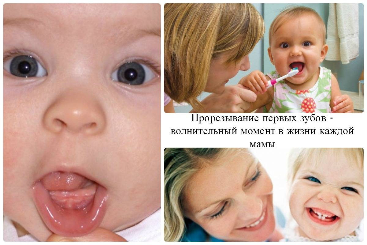 Когда какие зубы режутся: порядок и сроки прорезывания - много зубов