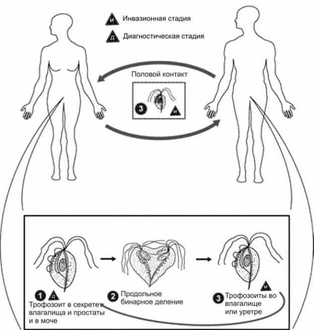Трихомониаз при беременности: влияние на плод и лечение