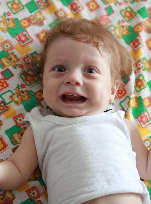 Мраморная болезнь у детей: кожа у грудничка, причины мраморности кожи, что это такое, при температуре