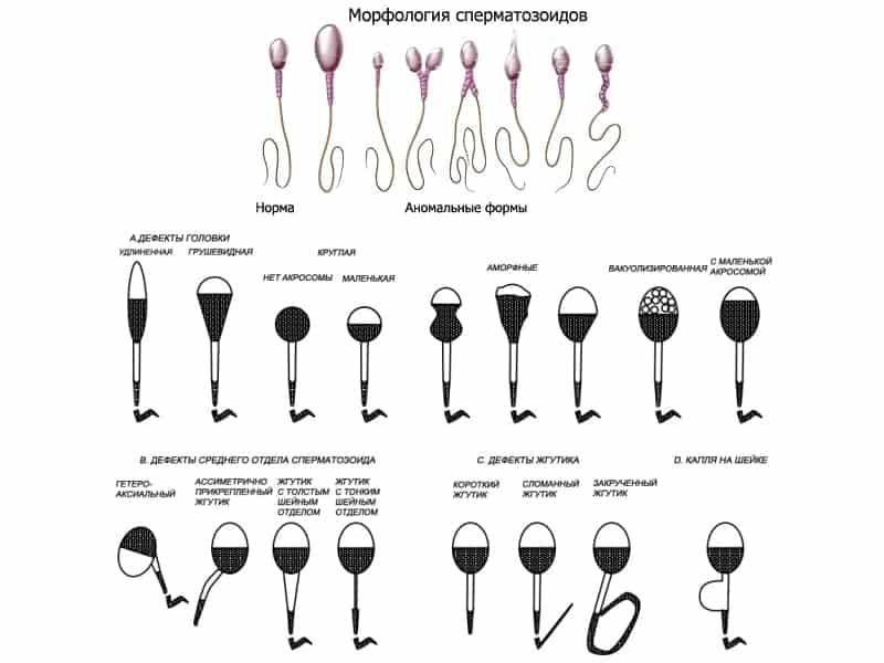 Что значит плохая спермограмма?