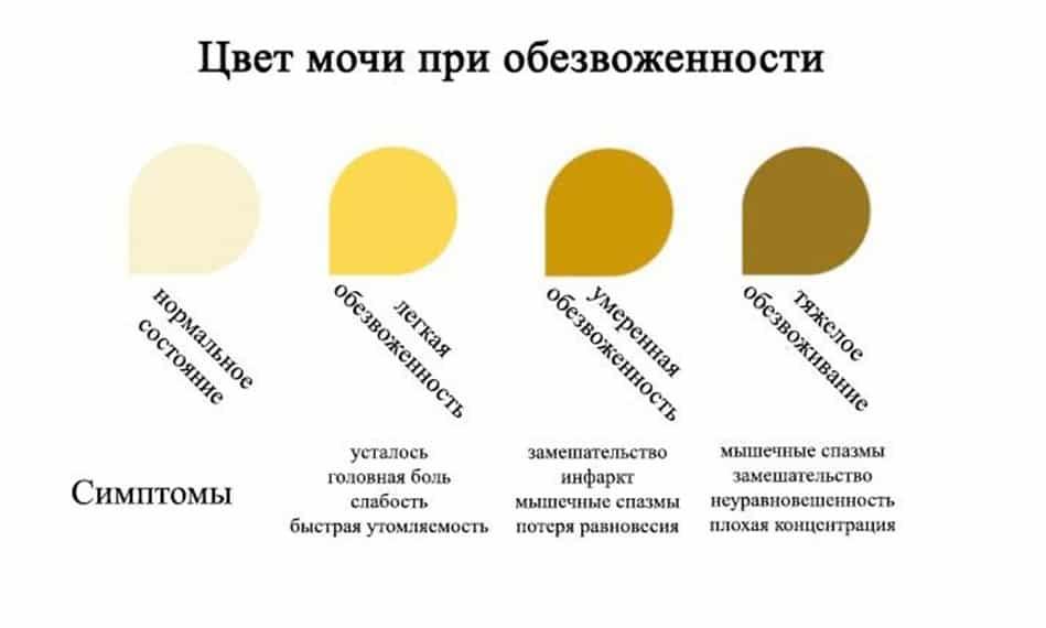 У ребенка моча ярко желтого цвета — почки