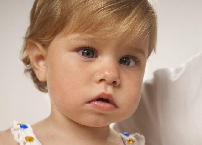 Косоглазие у детей: причины и лечение (58 фото): когда проходит у новорожденных, как лечить и исправить расходящееся и сходящееся косоглазие в домашних условиях