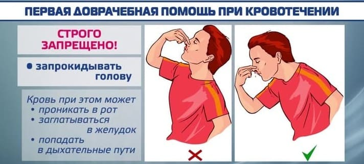 Носовое кровотечение у детей: причины, лечение и первая помощь