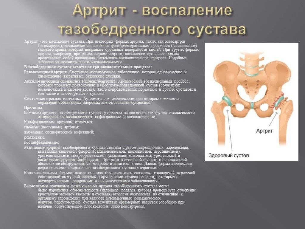 Инфекционно аллергический артрит тазобедренного сустава у детей