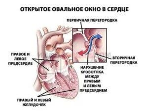 Незакрытое овальное окно в сердце у ребенка - здоров.сердцем