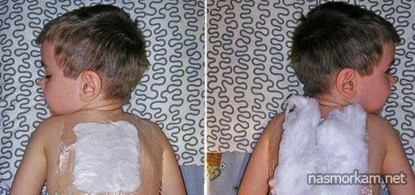 Как сделать компресс из капустного листа от кашля ребенку
