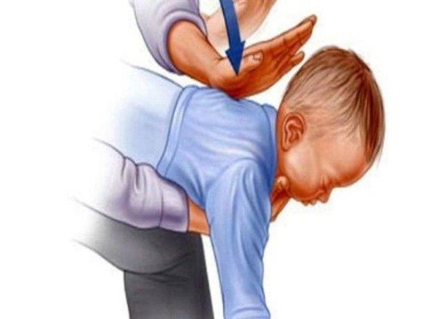 Что делать, если ребёнок подавился: первая помощь и меры предосторожности